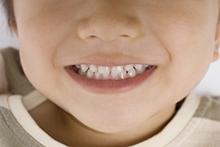 抜歯の可能性を減らせる